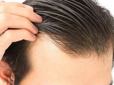 Frontal hair transplant