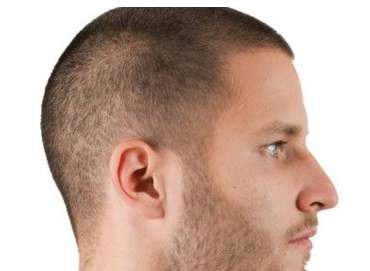 What Should be Ideal Hair Length on Hair Transplant Operation?