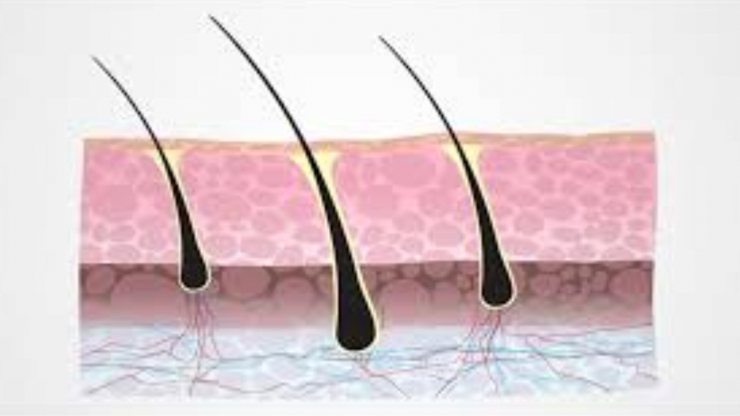 Are The Transplanted Hairs Permanent?