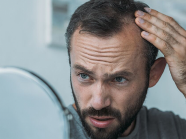 Which Hair Transplant Method is Right for You?