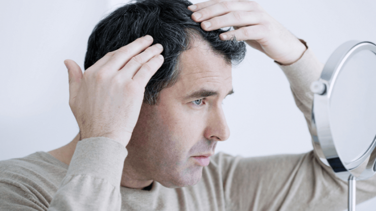 7 Questions to Ask Before Hair Transplantation